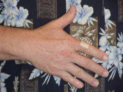 Right Hand Photo 3